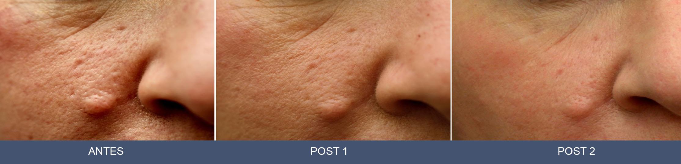 Sumamed por el acné